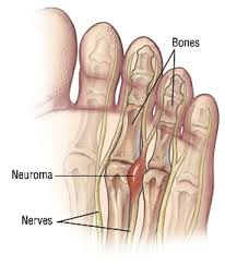 Ball of foot pain Morton's Neuroma