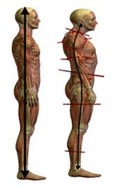 Postural alignment - back pain