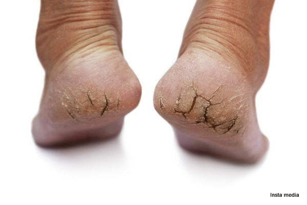 treatment for painful cracked heels