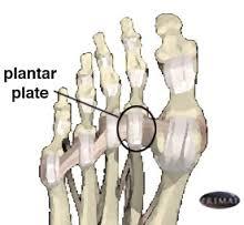Plantar plate tear 2