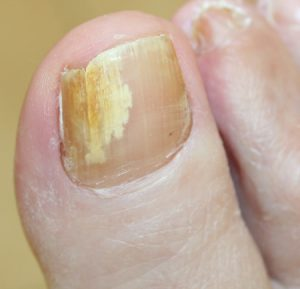 fungal-nail-infection