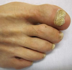 fungal-nail-infection_4