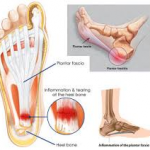 Plantar Fasciitis/Heel Pain: