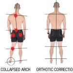 BACK PAIN CAUSED BY POOR FOOT ALIGNMENT