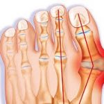 BUNIONS ARE MORE THAN A COSMETIC PROBLEM